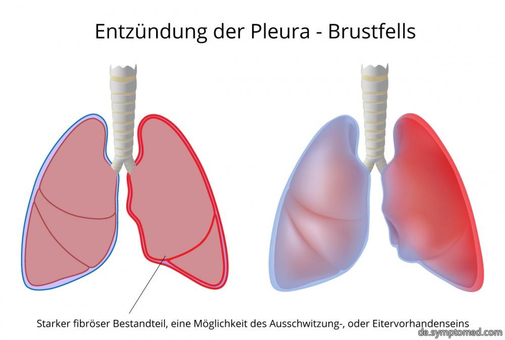 Entzündung der Pleura  - Brustfells