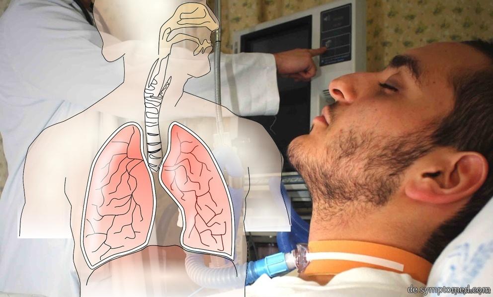 SARS - das Schwere Akute Respiratorische Syndrom