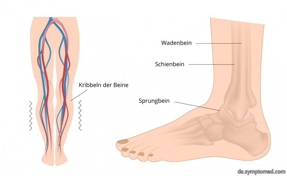 Syndrom der ruhelosen Beine