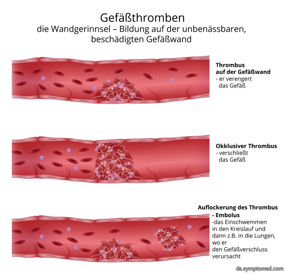 Gefäßthromben