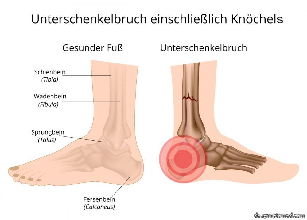 Unterschenkelbruch einschließlich Knöchels