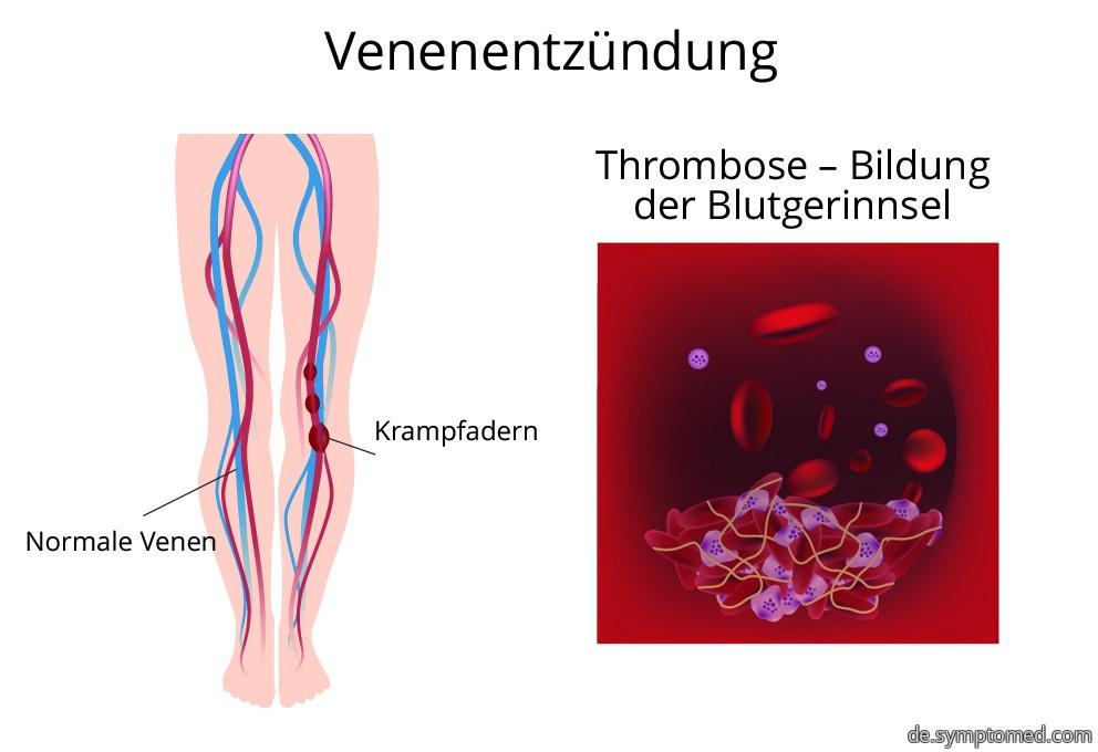 Venenentzündung - Bildung der Blutgerinnsel