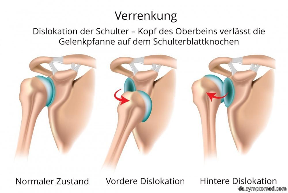 Die verrenkte Schulter - Symptome