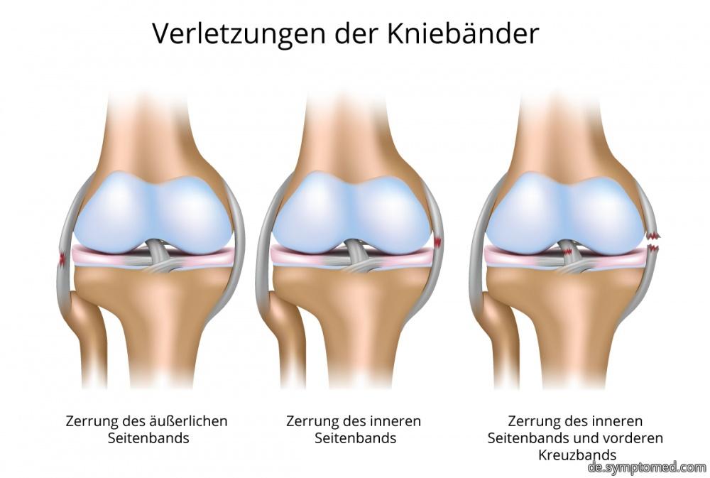 Verletzungen der Kniebänder