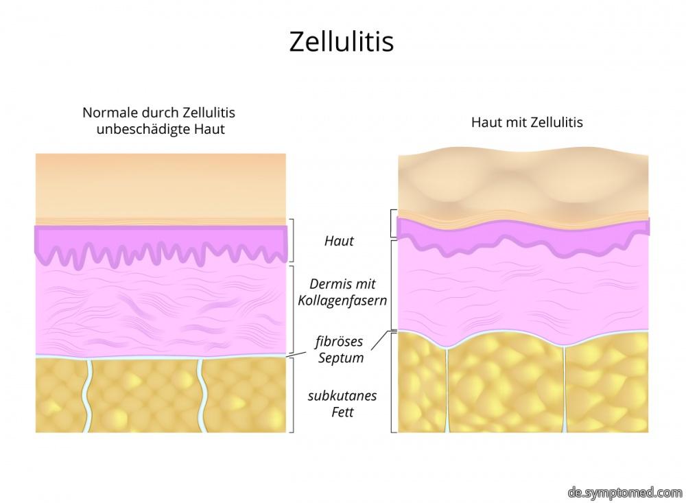 Haut mit Zellulitis