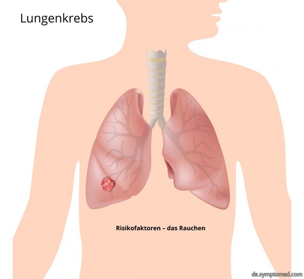 Lungenkrebs - die häufigste Art von Krebs