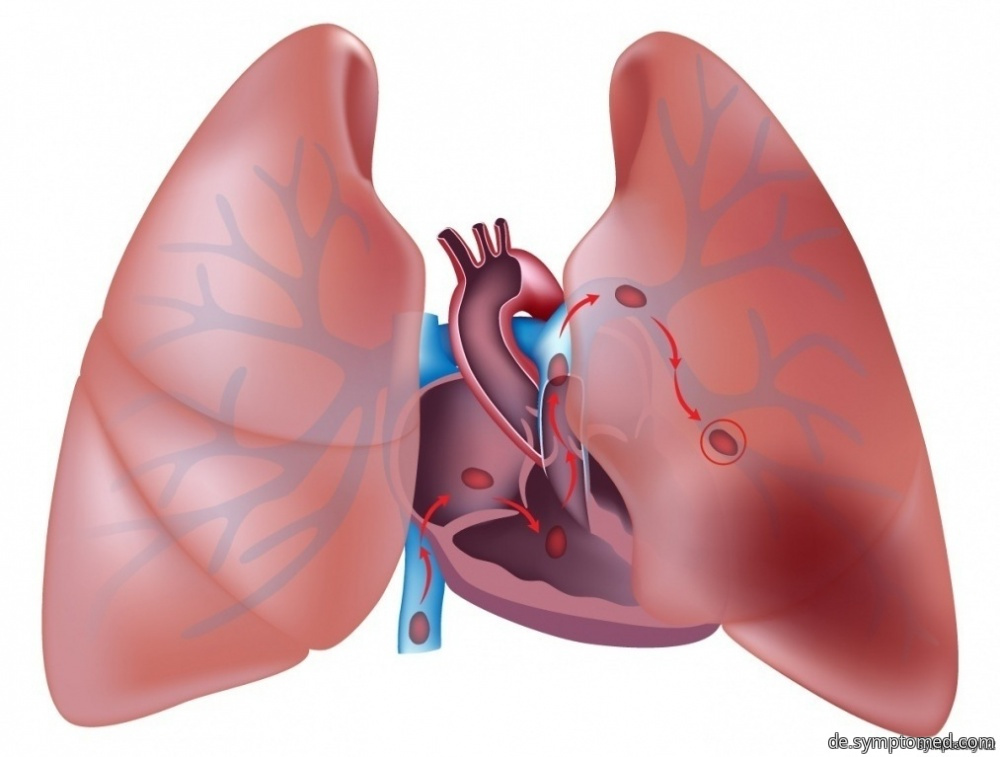 Blutgerinnseln in Lungen