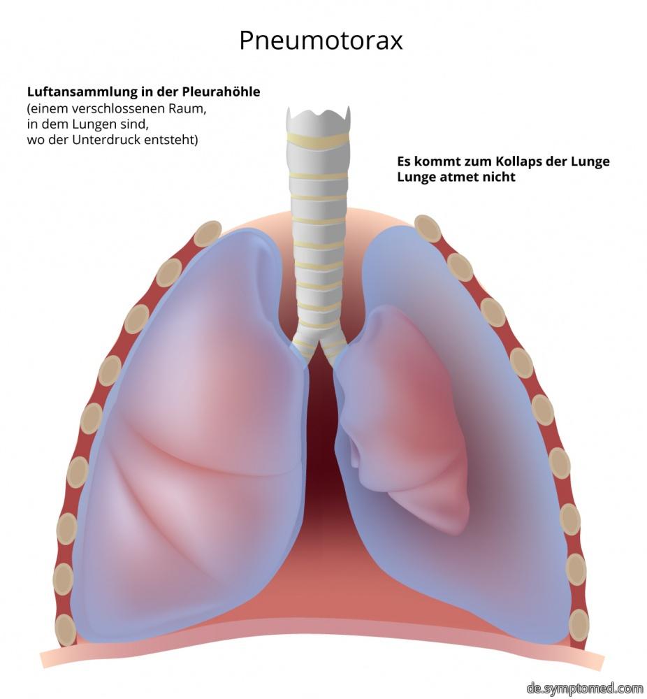 Pneumothorax - Luftansammlung in Lungen