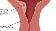 Gebärmutterkrebs