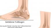 Flache Füße
