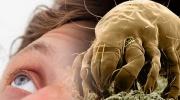 Allergie auf Milben