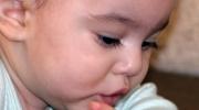 An der Mittelohrentzündung leidendes Baby