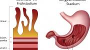 Peptisches Geschwür auf der Magenschleimhaut