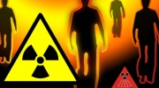 Strahlenkrankheit