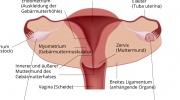 Ovarialzyste