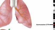 Zystische Fibrose