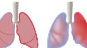 Brustfellentzündung