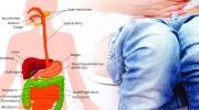 Bauchschmerzen während der Amöbenruhr