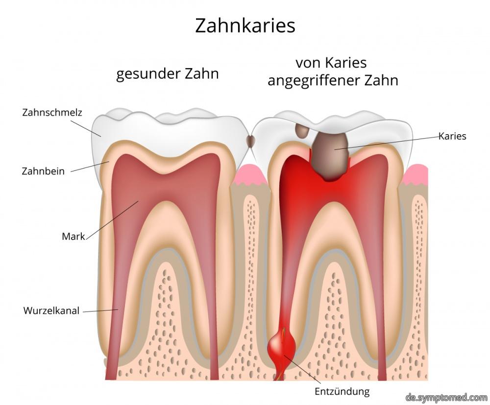Ein gesunder Zahn und Zahn mit dem Karies