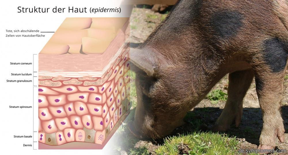 Schweinerotlauf - eine von Schweinefleisch übertragene Erkrankung