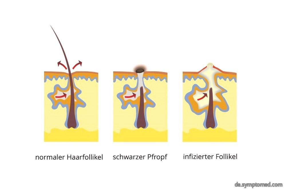 Acne vulgaris.jpg