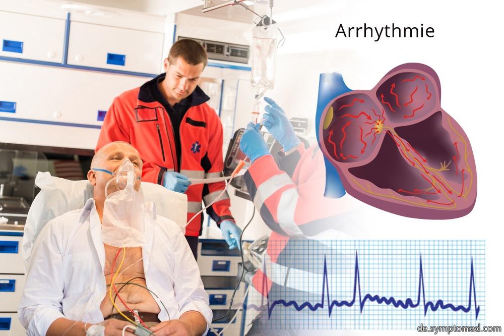 Herzarrhythmie