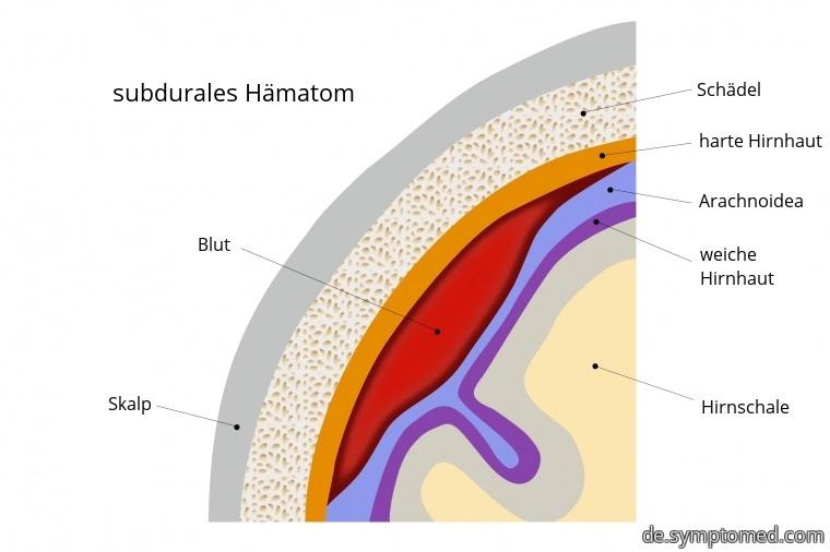 Subdurales Hämatom