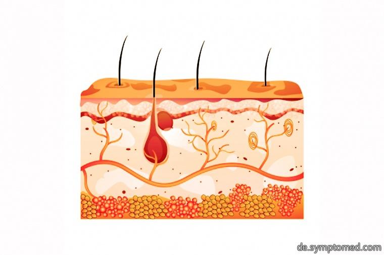 Juckreiz der Haut