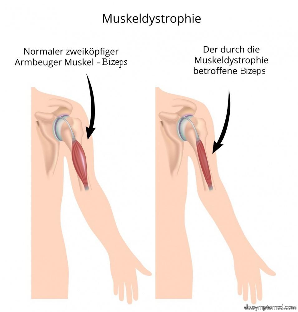 Muskeldystrophie