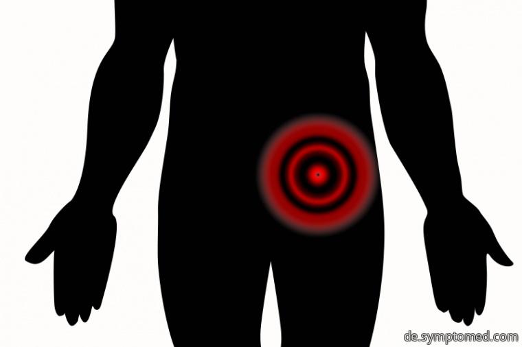 Schmerz im linken Unterleib