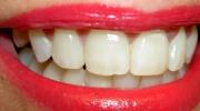 Empfindlichkeit der Zähne