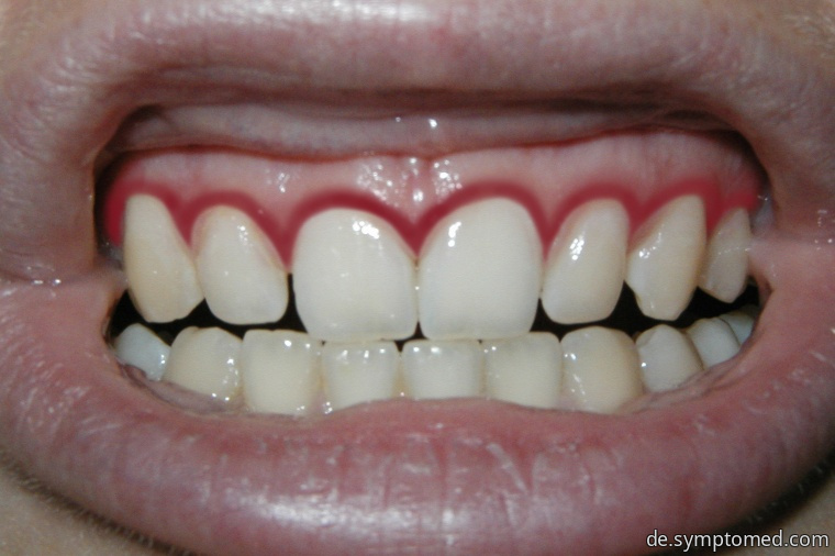 Zahnfleischbluten