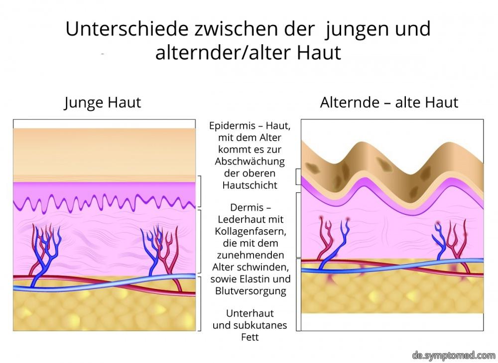 Unterschiede zwischen der jungen und alternder Haut
