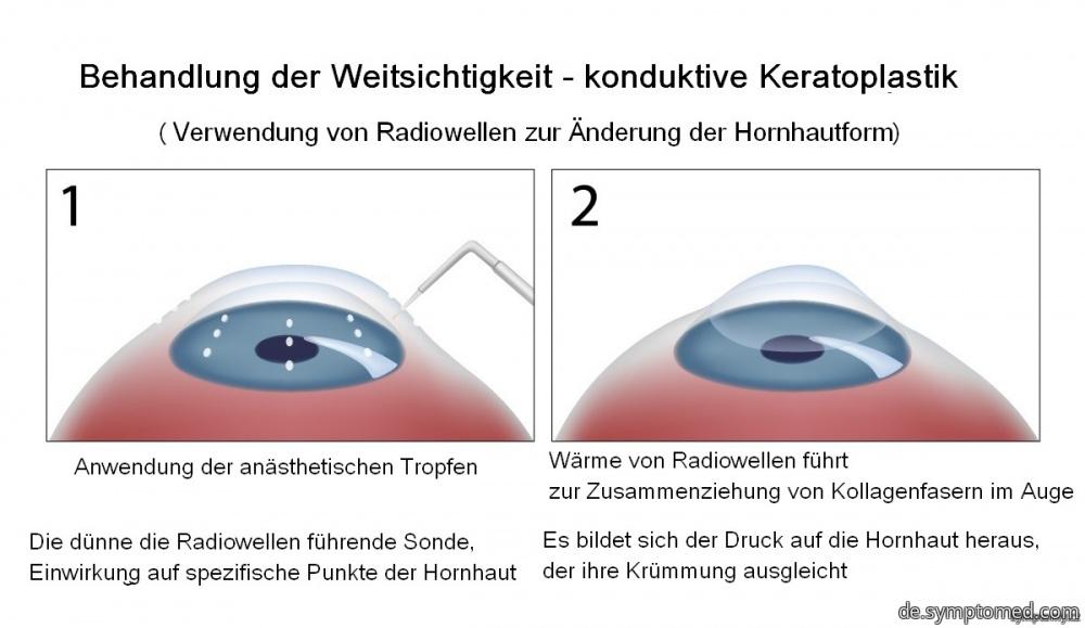 Konduktive Keratoplastik - Behandlung der Weitsichtigkeit