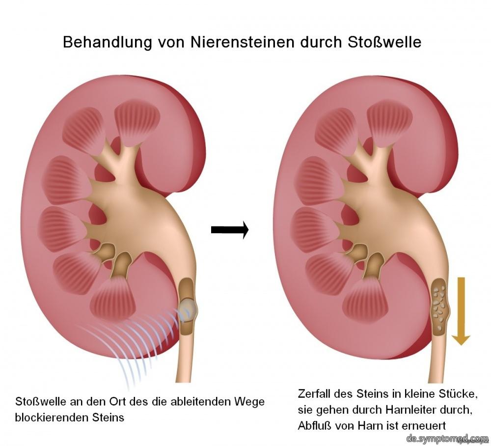 Behandlung von Nierensteinen durch Stoßwelle