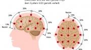 Elektrodenplatzierung während EEG - Untersuchung