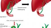 Cholezystektomie - Gallenblasenentfernung