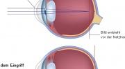 Laseroperation der Augen - LASIK