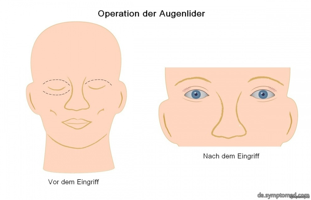Operation der Augenlider