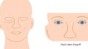 Operation der Augenlider