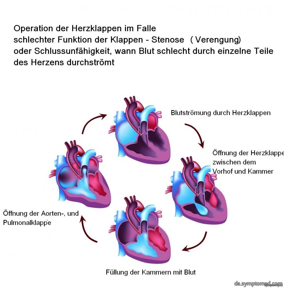 Operation der Herzklappen