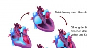 Operation der Herzklappe