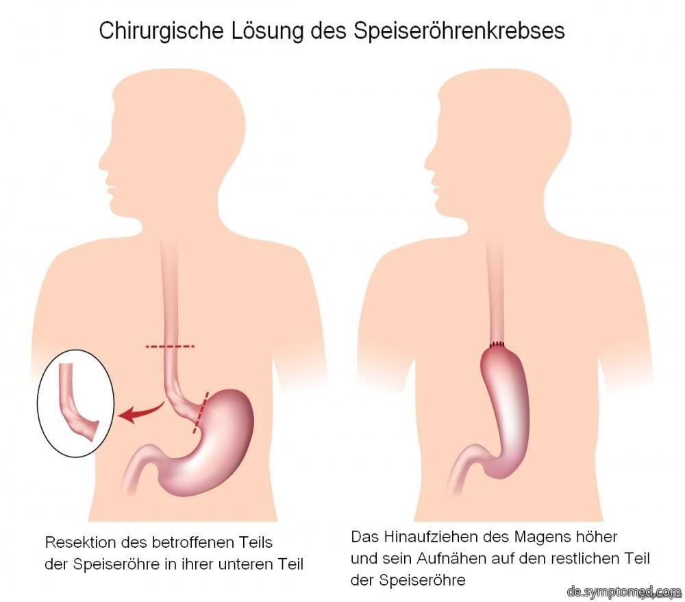 Chirurgische Lösung des Sepeiseröhrenkrebses