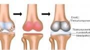 Totalersatz des Kniegelenks bei Arthrose