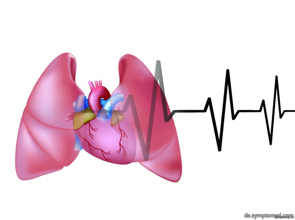 Herzversagen