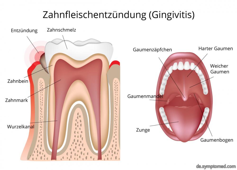 Schematische Darstellung der Zahnfleischentzündung