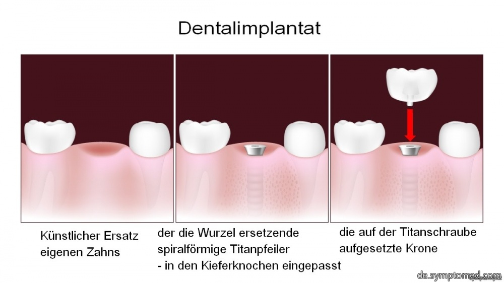 Dental-(Zahn-)implantat