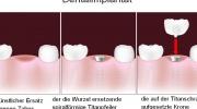 Dental-(Zahn-)implantat